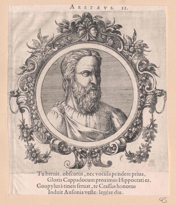 Aretaeus