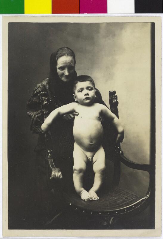 Kinderrachitis in Wien