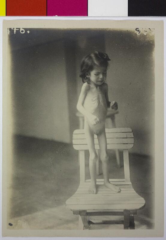 Kind mit Tuberkulose